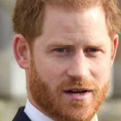 Photo of El Príncipe Harry y su lucha contra la calvicie