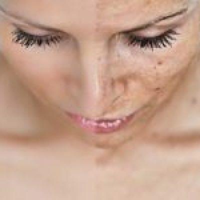 Photo of Esto es lo que debes saber sobre las manchas de pigmentación en la piel